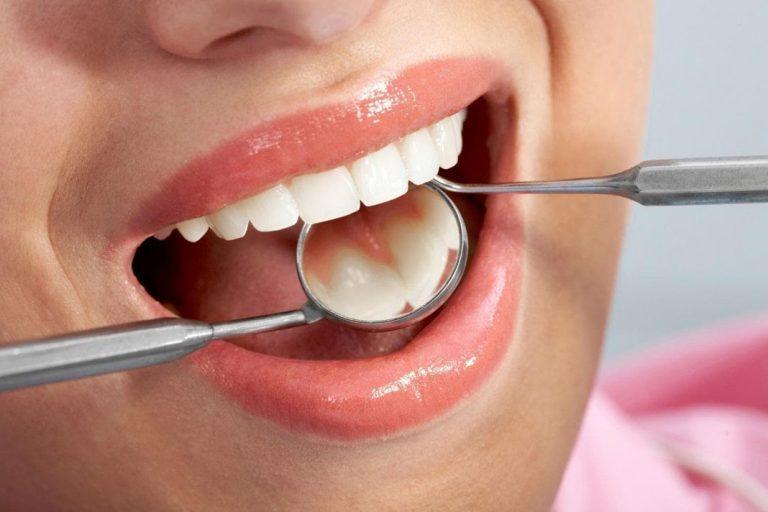 Diş Taşı Neden Olur? Nasıl Temizlenir?